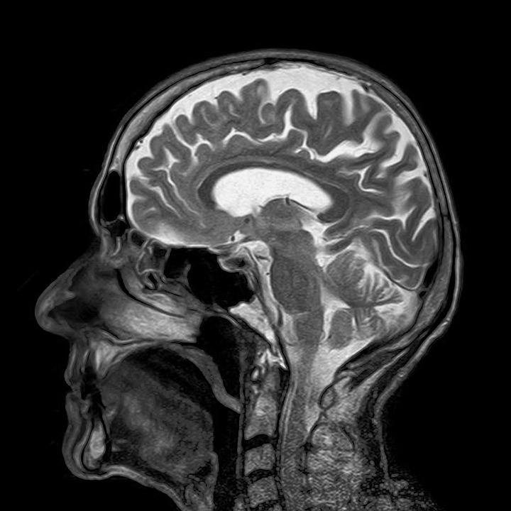 Неврологическая помощь